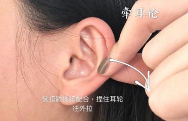 捏揉耳轮法