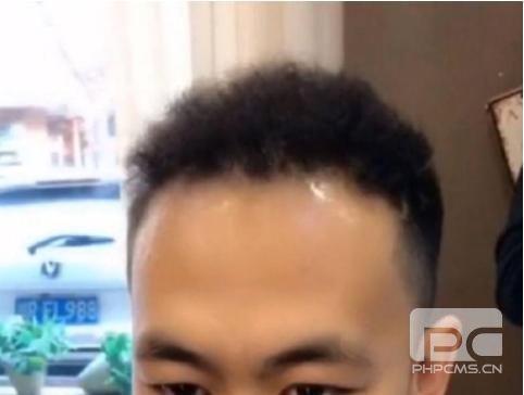 头顶头发稀少,发量少