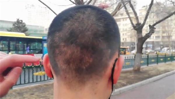 植发的部位会长出正常的发量。