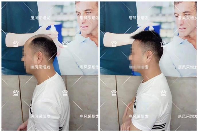 唐风采定做的假发