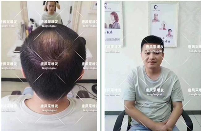 一对一量身设计的假发