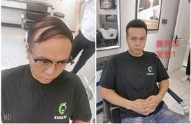 男士怎样给自己选假发?脱发人记住,像这样买假发才靠谱!
